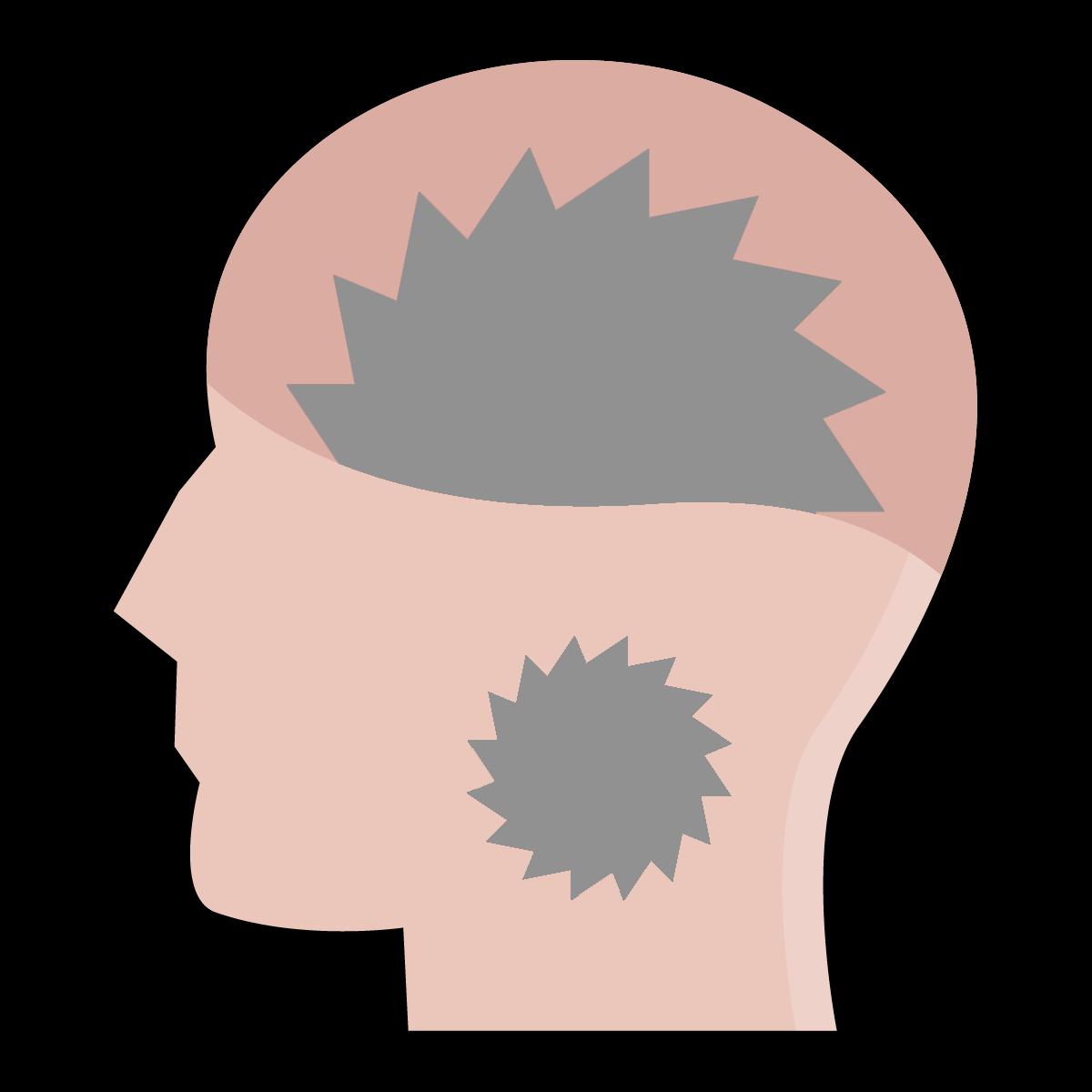 tumor-glave-vratu2